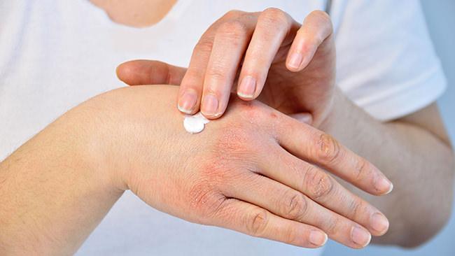 アトピー性皮膚炎の患者さんの約8割が「疾病負荷」を抱えることが明らかに。最も支障があるのは「睡眠」